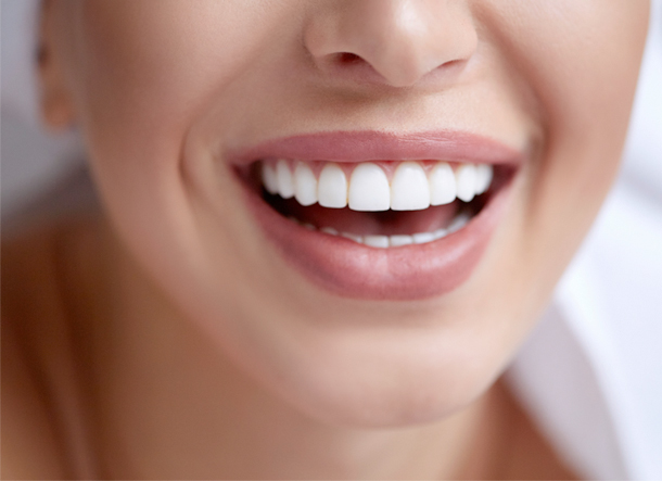 Veneers = Patrick McAnerney Dentist